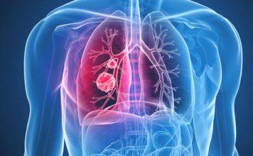 Рак в лёгких