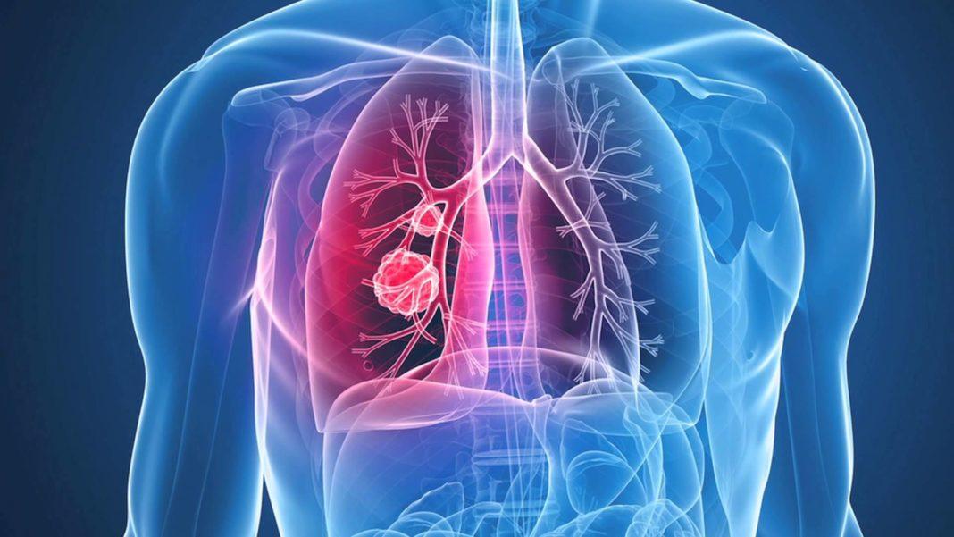 Центральный рак правого легкого 4 стадия лечение