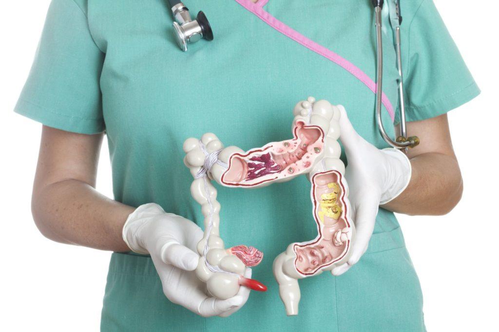 Стадии рака тонкого кишечника