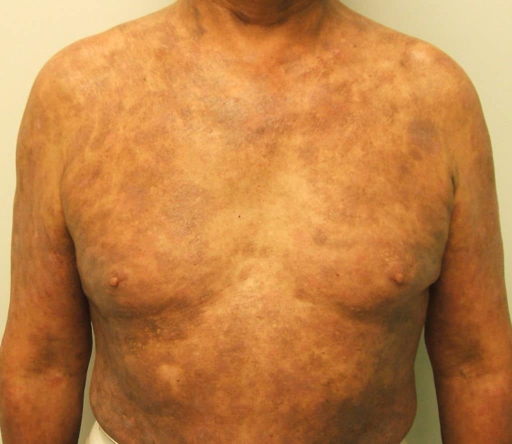 psoriasis thesis The aim of this thesis was to study psoriasis phenotypes at disease onset, to explore putative precipitating factors and to investigate cardiovascular morbidity.