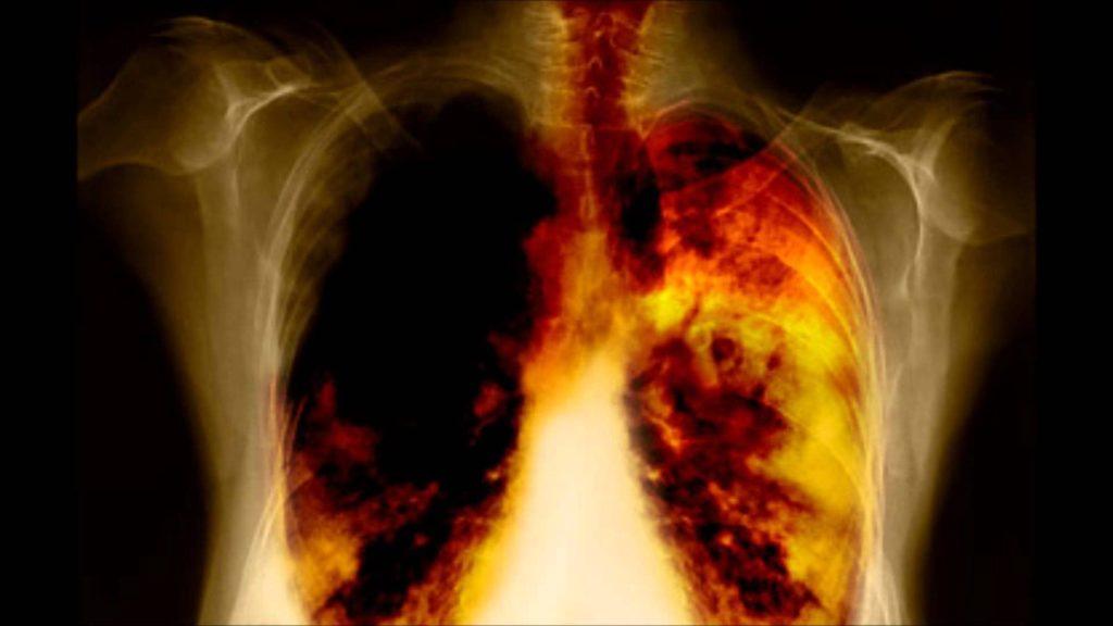 Саркома лёгких