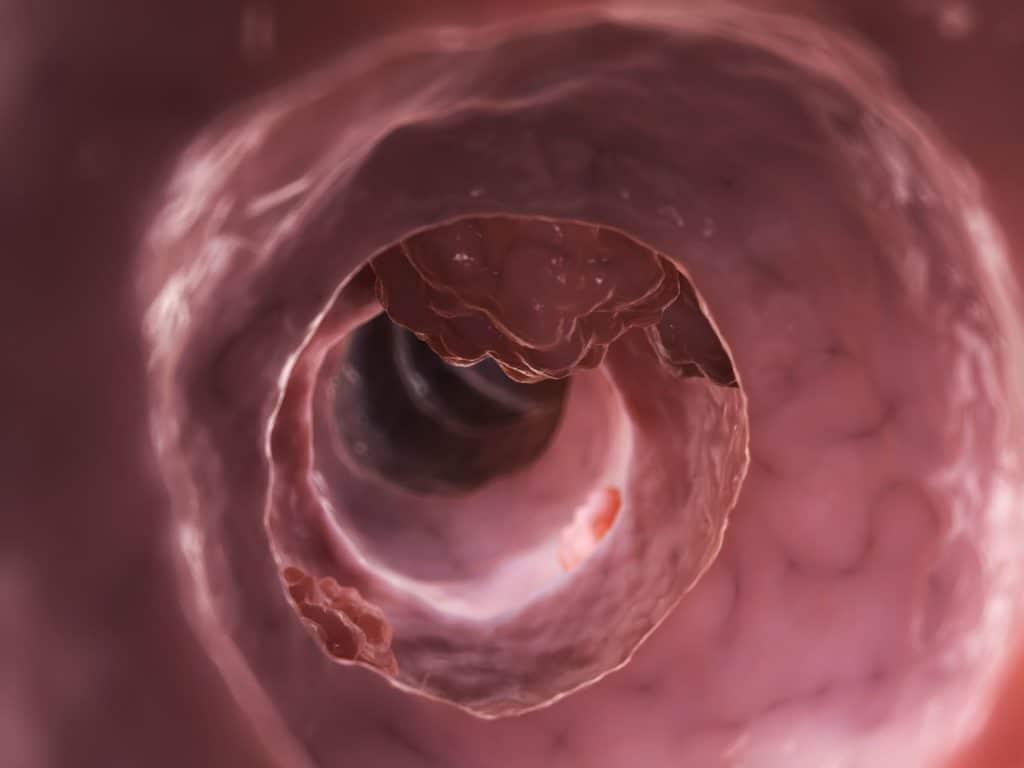 Симптомы аденокарциномы кишечника