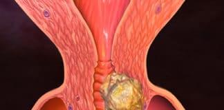 3 стадия рака матки