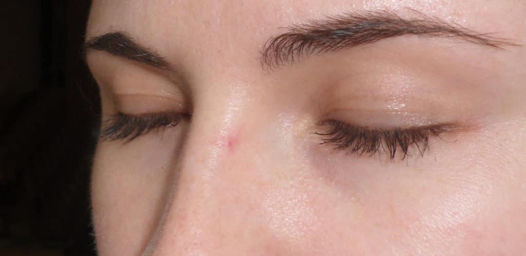 Базалиома кожи носа на начальной стадии