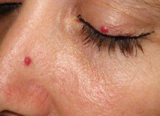 Базилиома носа