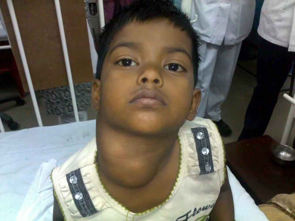 Детская лимфома