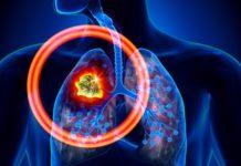 Лимфома легких