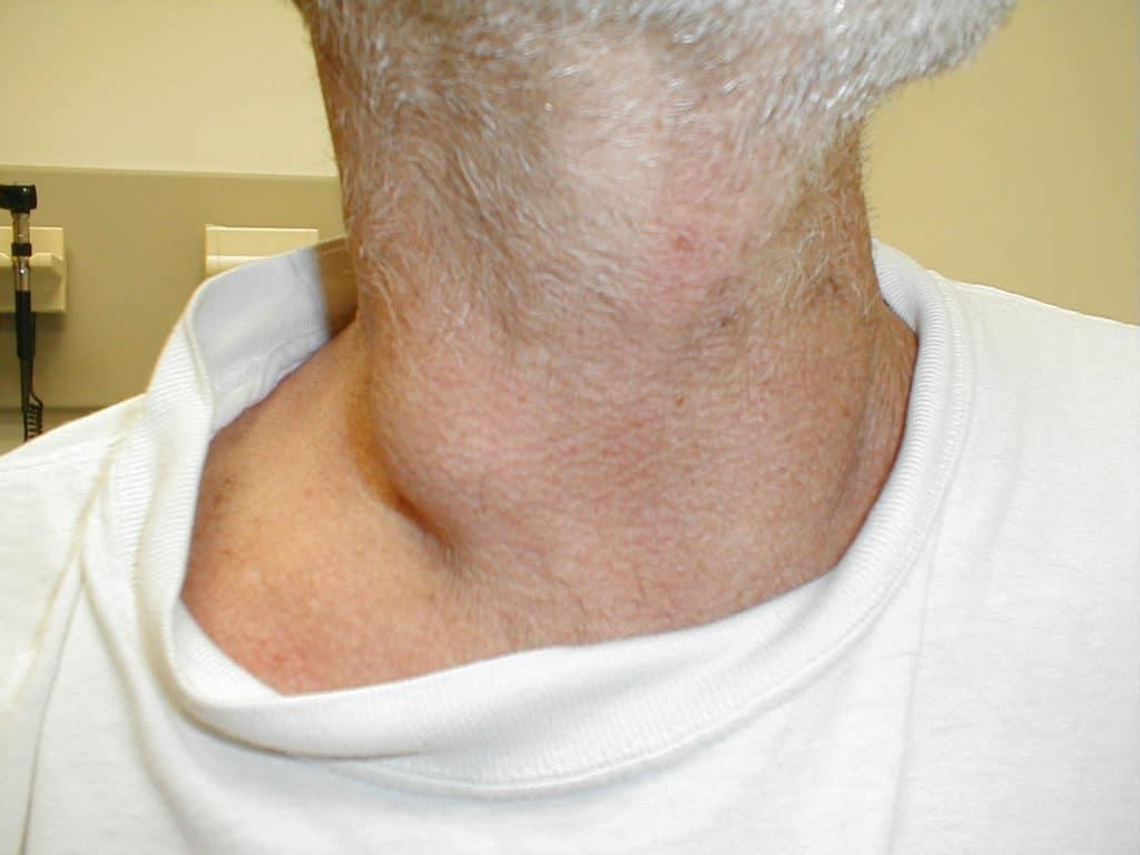 Лимфома на шее