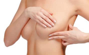 Паппиломы на груди