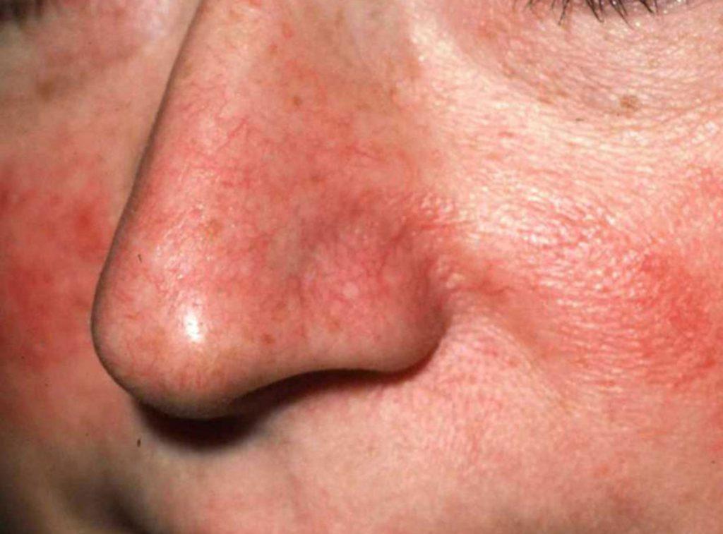 Первые признаки базалиомы - тонкие красные прожилки на носу