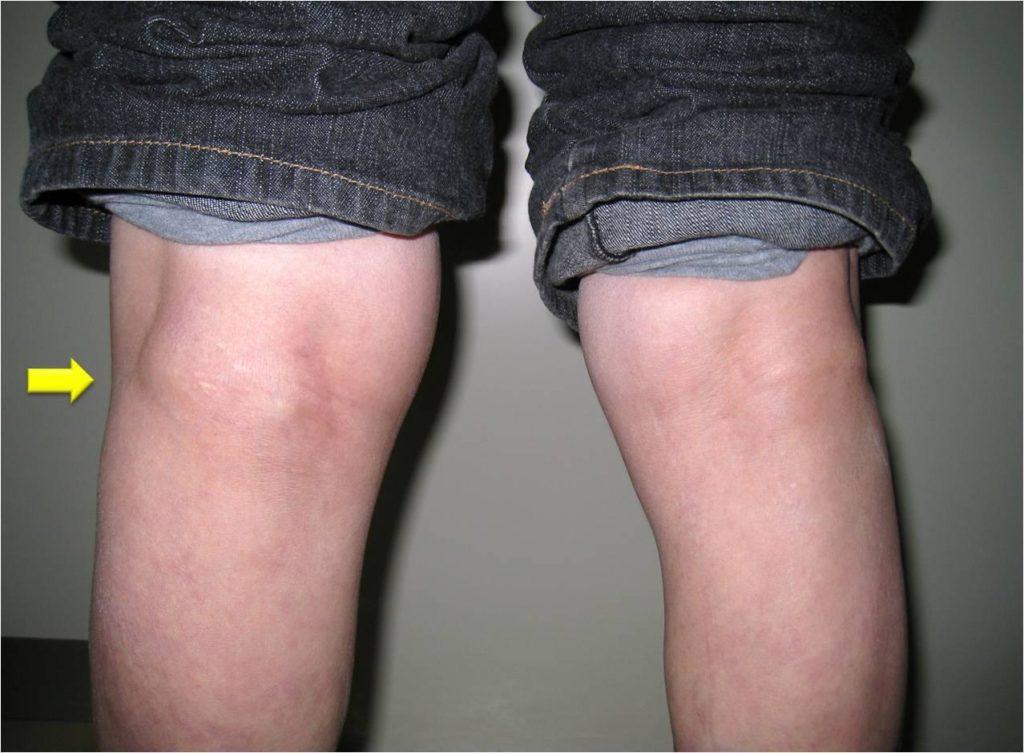 Припухлости на колене