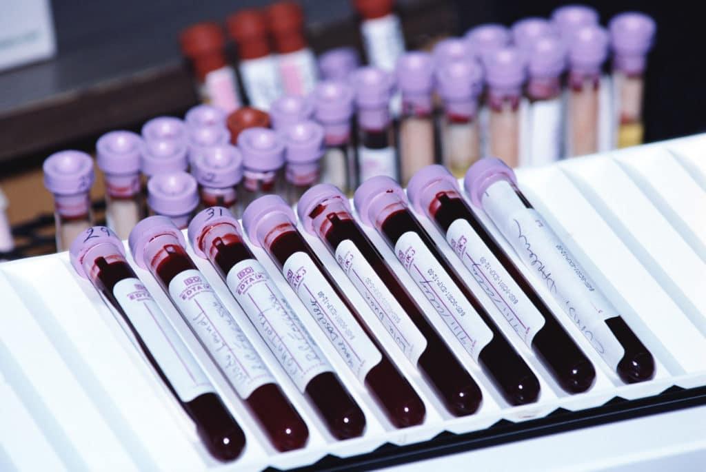 Расширенный биохимический анализ крови