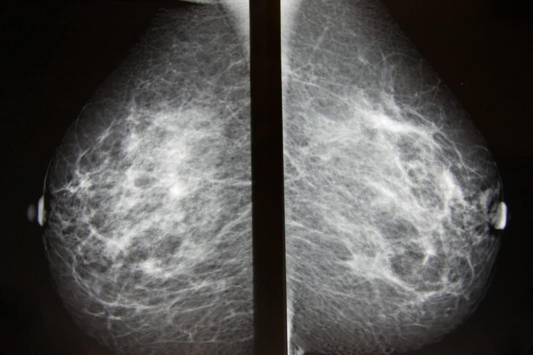 Негативный рак молочной железы на рентгене