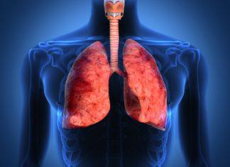 Саркома в лёгких