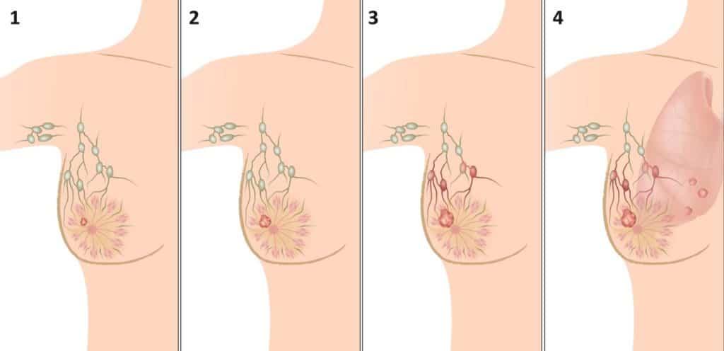 Клиническая картина развития рака груди