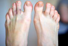 Фиброма на ноге
