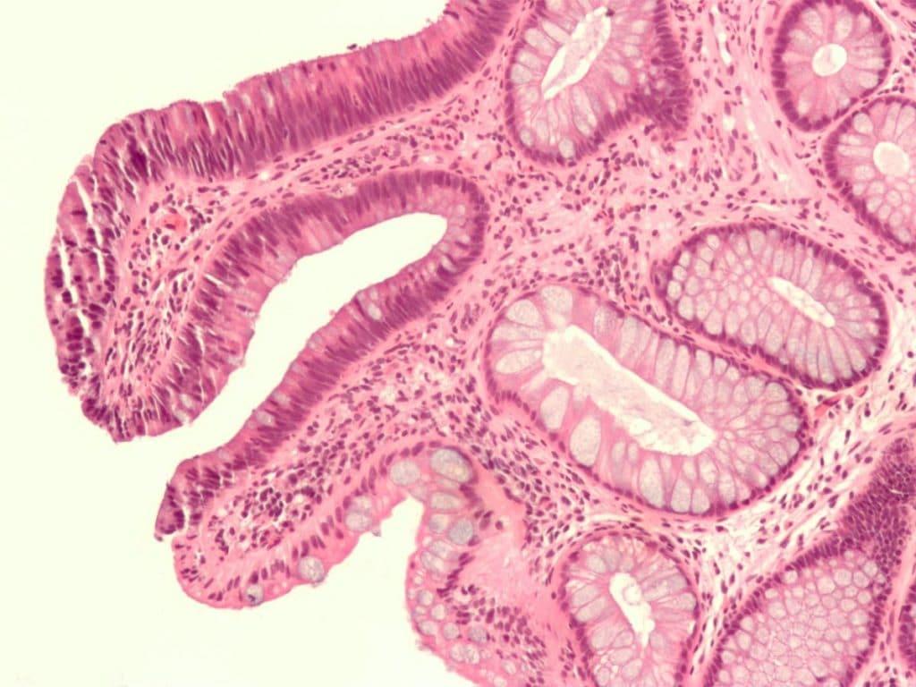Гиперпластический полип под микроскопом