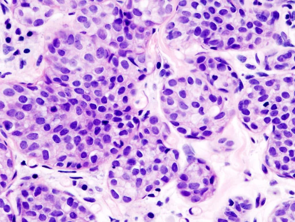 Карцинома в клетках
