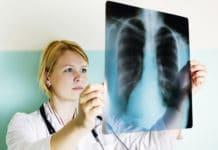 Рентген рака плевры
