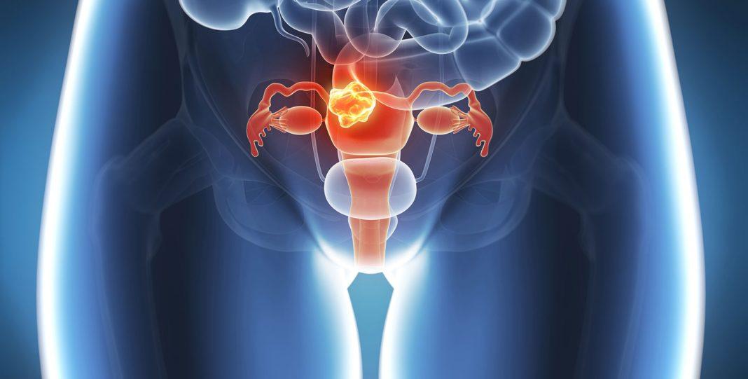 Рак шейки матки: сколько живут, прогнозы, симптомы и признаки