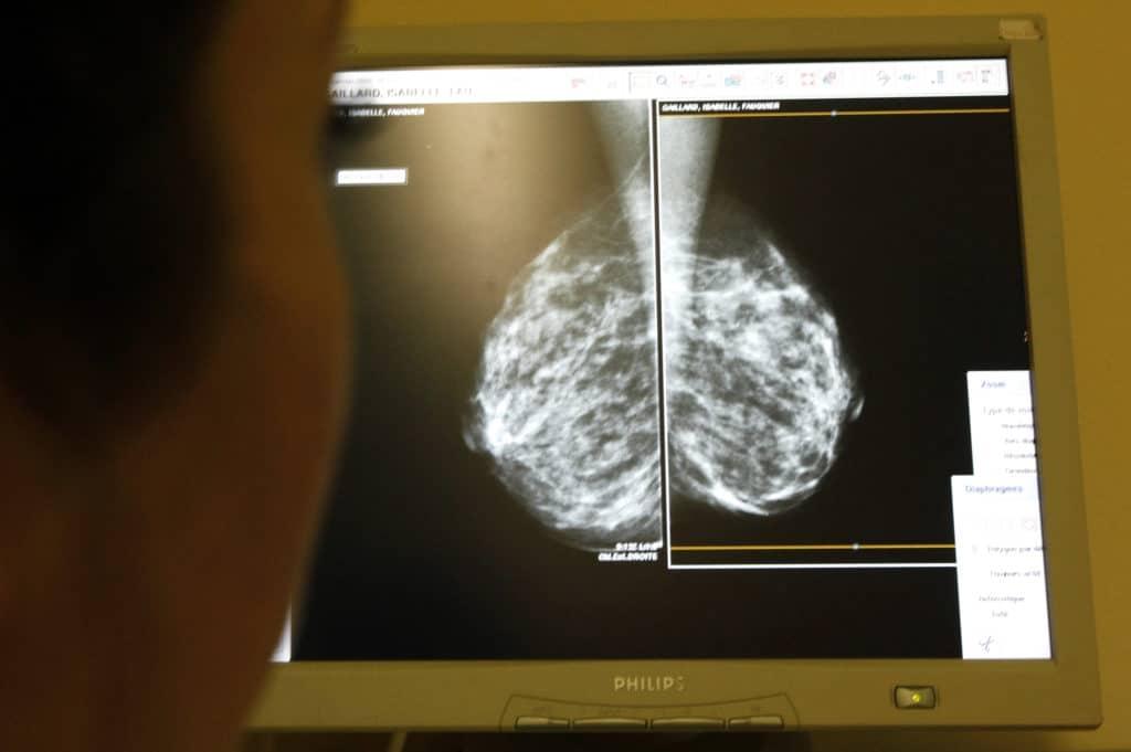 Люминальный рак груди