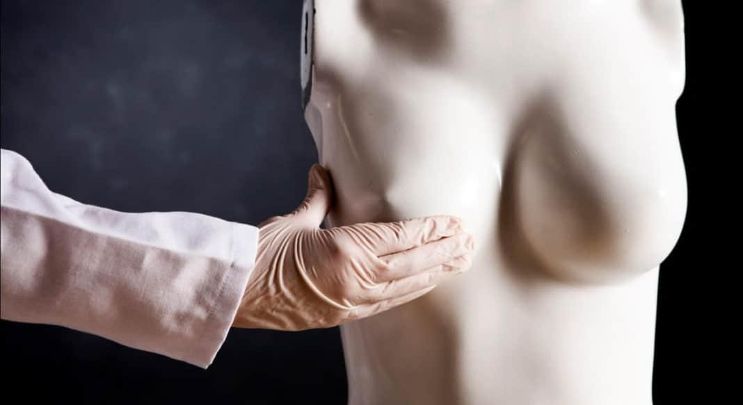 Люминальный тип а рака молочной железы лечение
