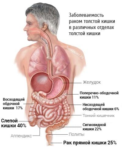Статистические исследования онкологии кишечника
