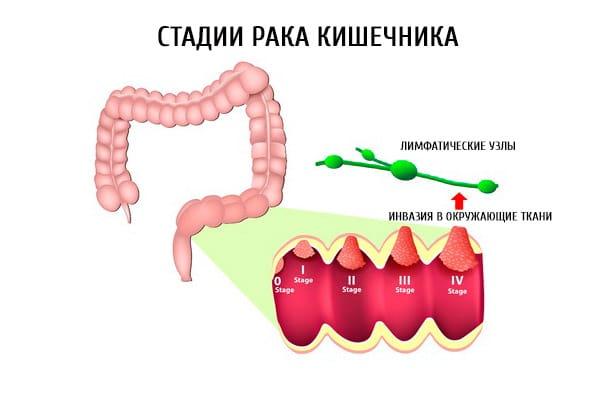 Лечение на различных стадиях заболевания