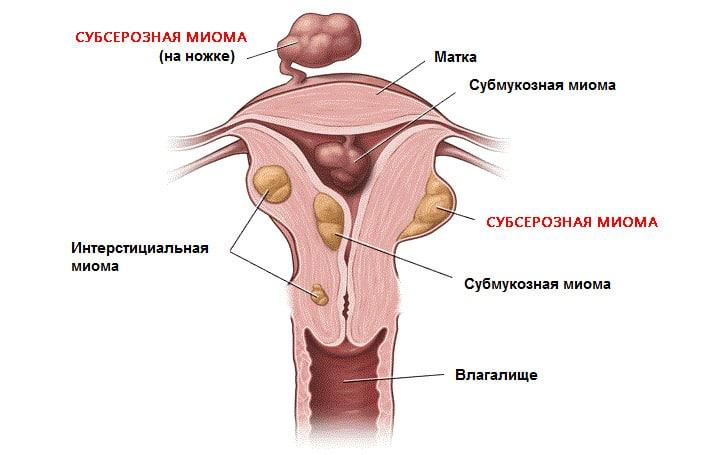 Вид субсерозной миомы матки