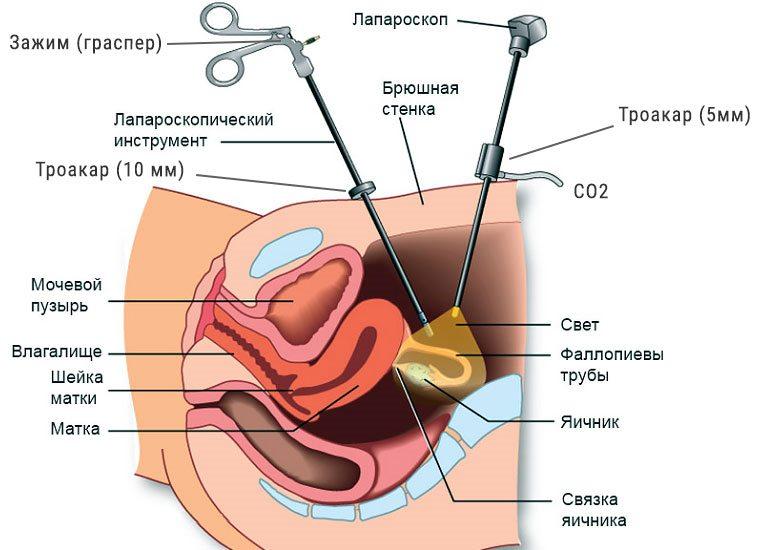 Как протекает лапароскопия