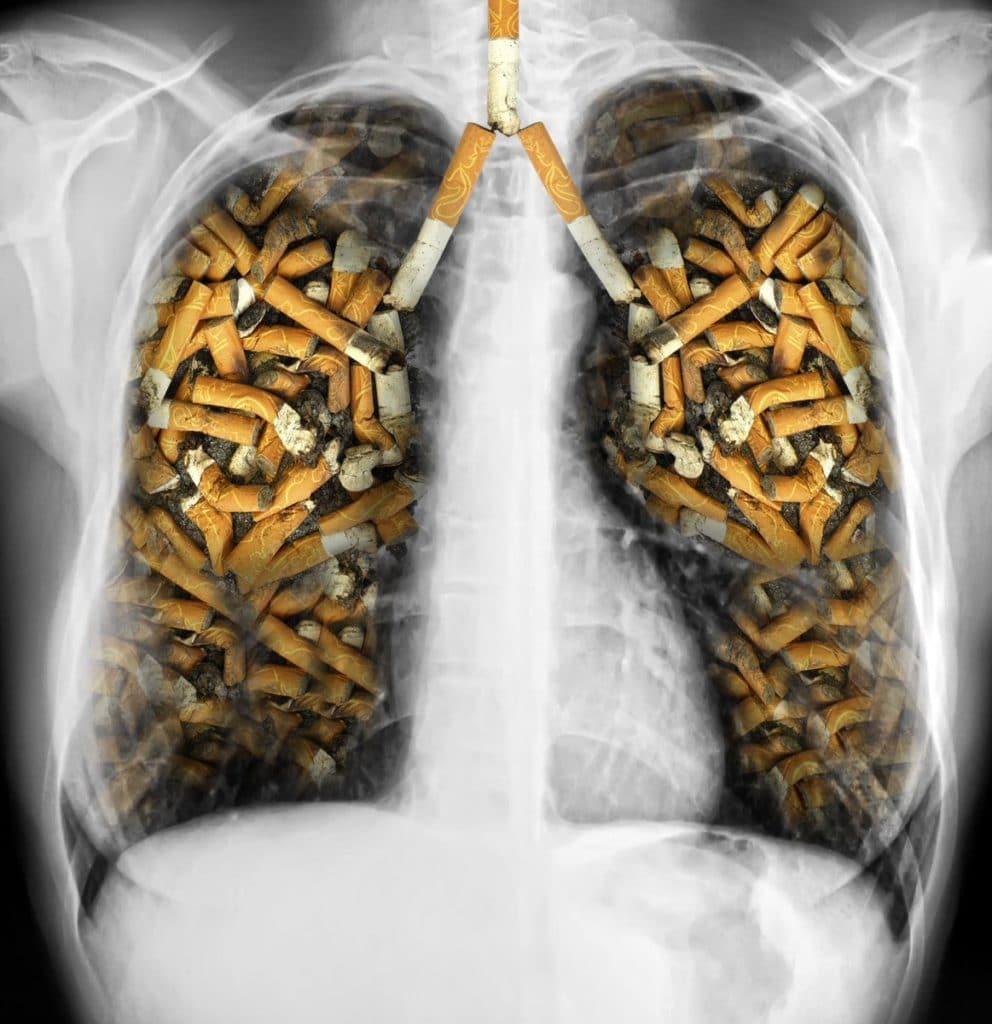 основная причина рака легкких