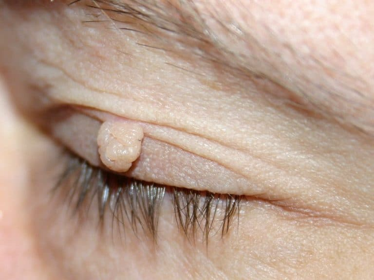 папиллома около глаза