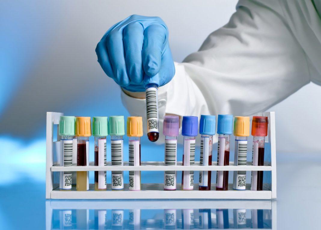 Как берут анализ на ВПЧ у мужчин