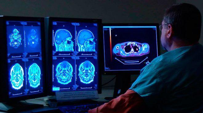 Киста эпифиза головного мозга