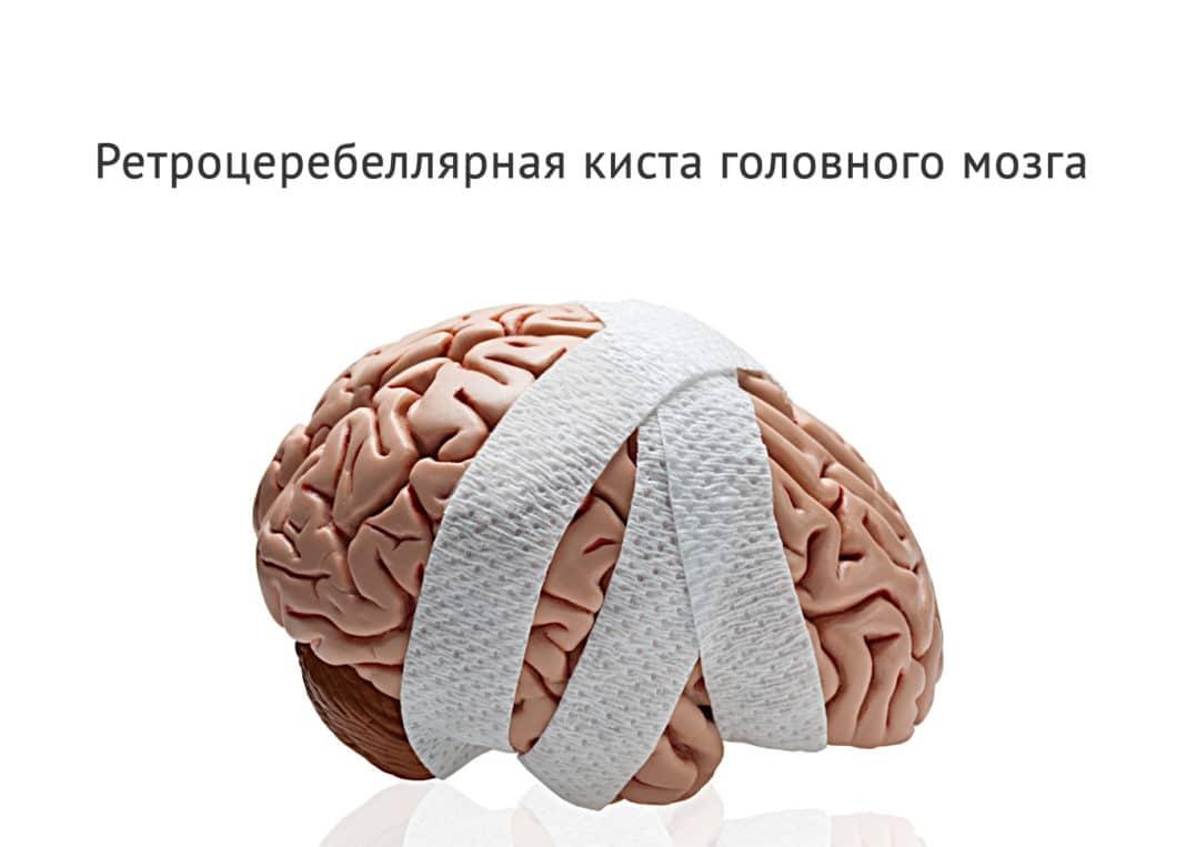 Арахноидальная киста головного мозга размеры норма