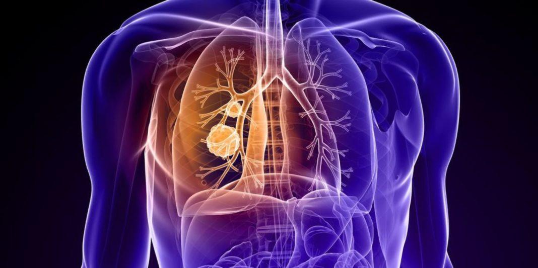 Лечение мелкоклеточного рака бронха