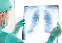 Как умирают от рака легких