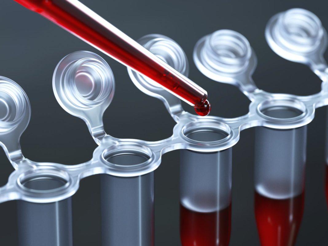 Анализ крови при раке желудка показатели