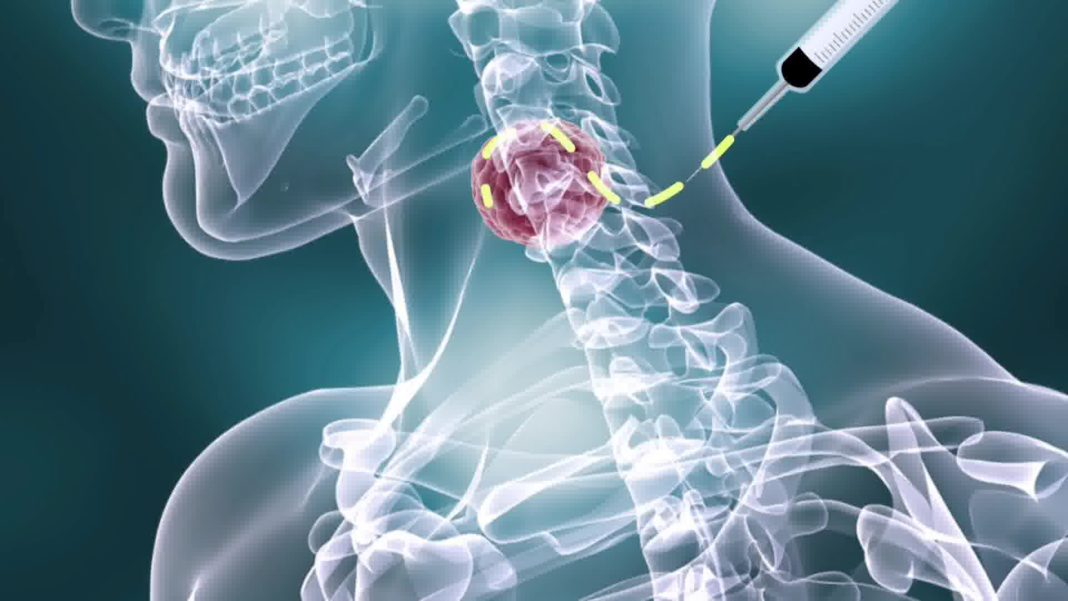 Ходжкина лимфома онкология