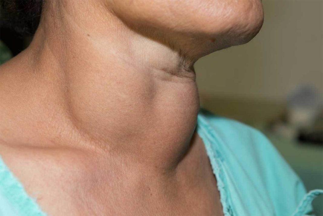 Шитовидка