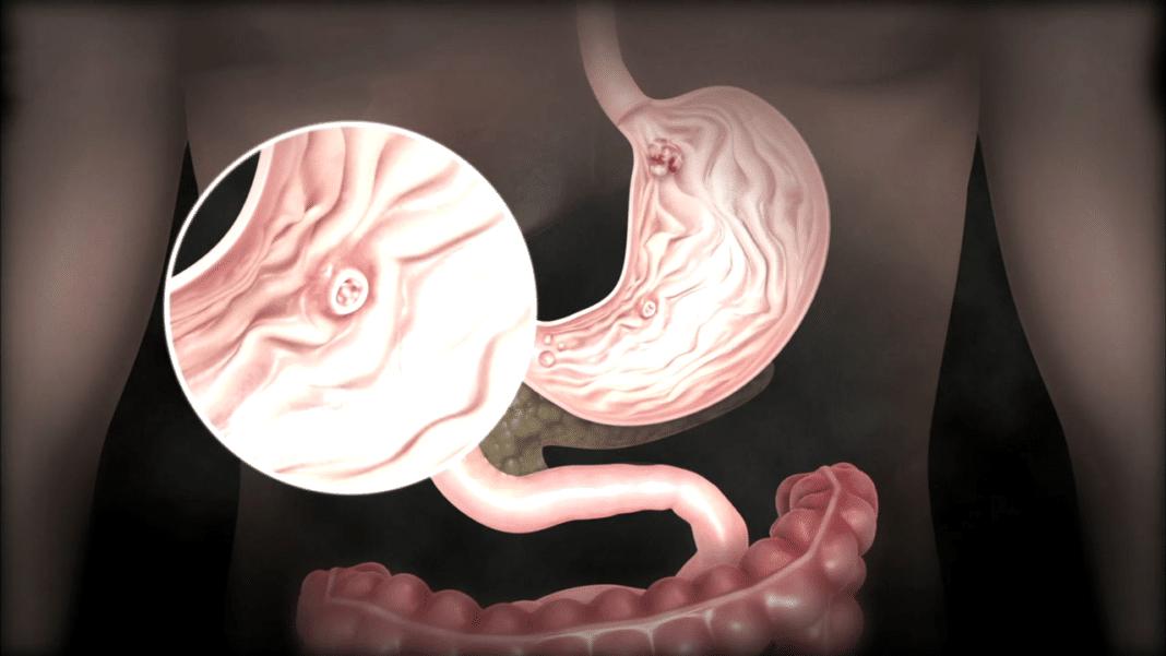 Рак желудка большая опухоль прогноз жизни. Удаление желудка при раке — полностью или частично
