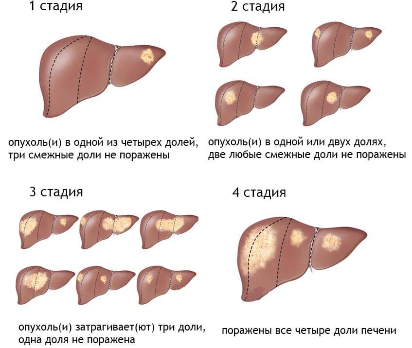 Рак печени