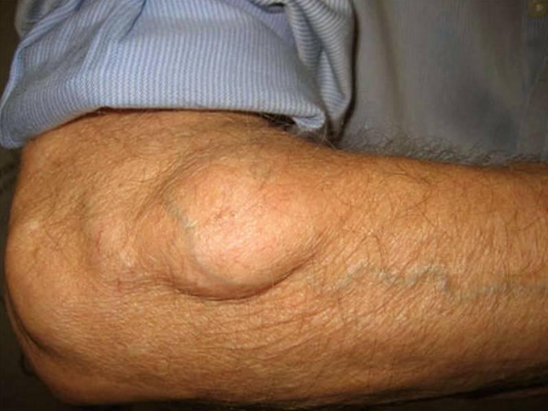 Признаки саркомы мягких тканей