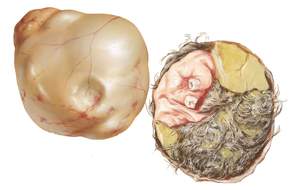 Тератома яичника