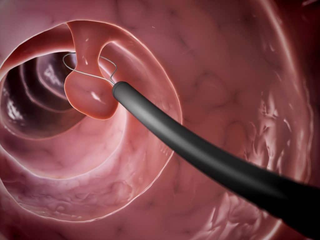 Операция при полипе уретры у женщин