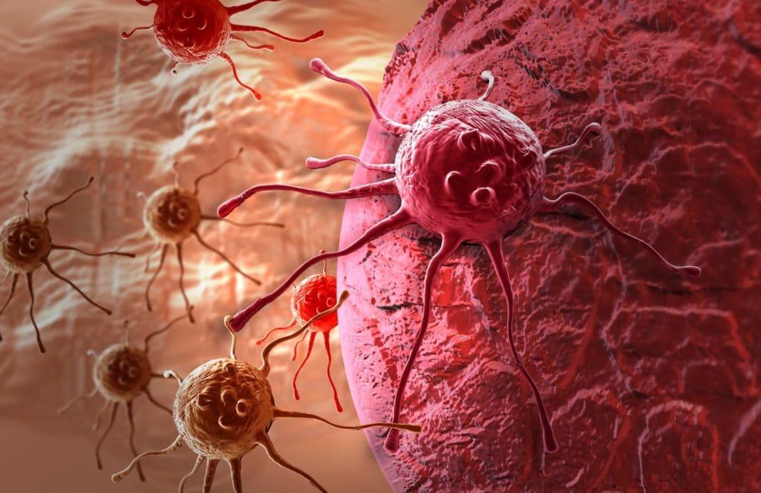 Самые распространенные разновидности рака, наблюдаемые в России