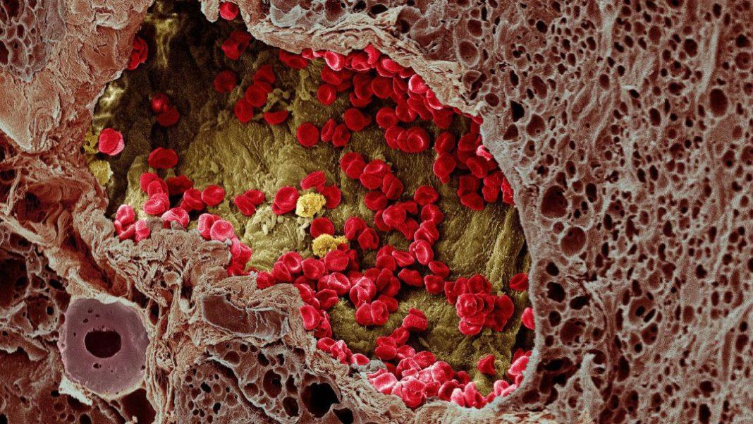 Минимально инвазивное лечение рака