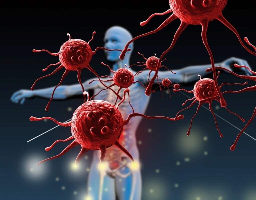 Инвазия что это такое в онкологии