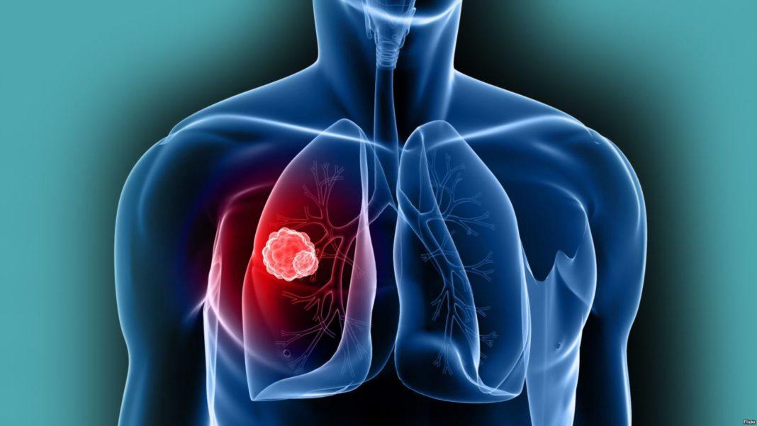 Онкомаркеры на рак горла и гортани