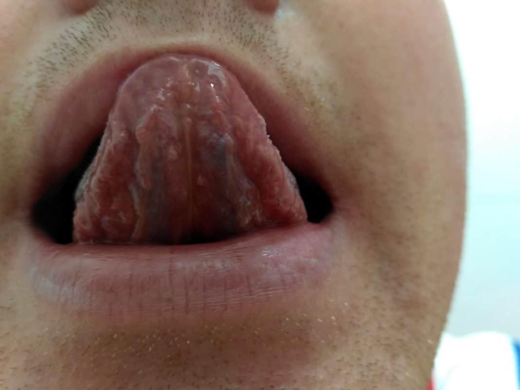Папилломы под языком